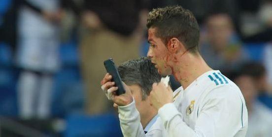 Cristiano Ronaldo utilise un iPhone pour inspecter sa blessure